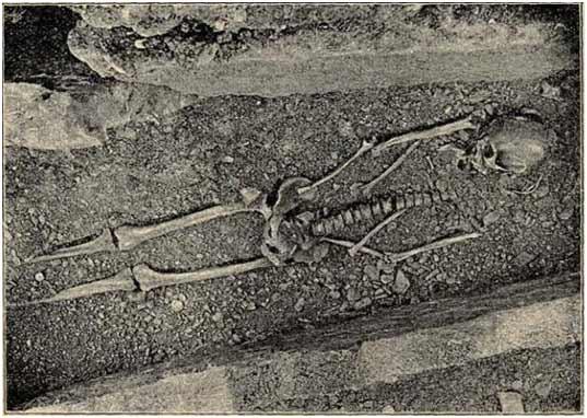 skelet_povijest